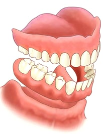 non Broken Dentures illustration