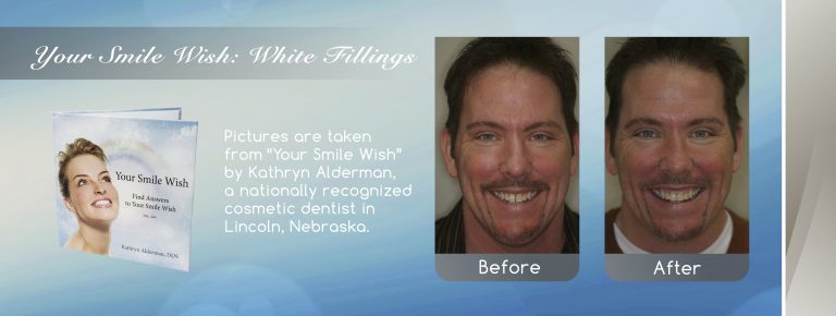 White Fillings lincoln family dentistry