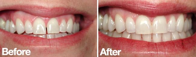 Teeth Bonding Lincoln Dentist