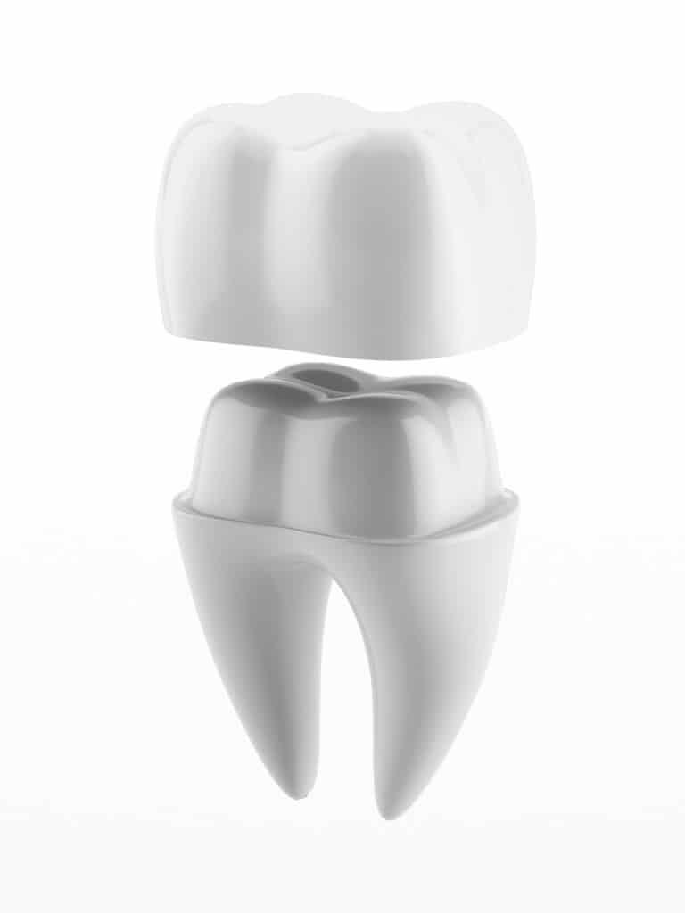 dental crown lincoln NE dentist