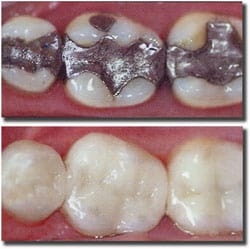 replacing amalgam silver fillings
