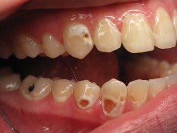 decay-front-teeth