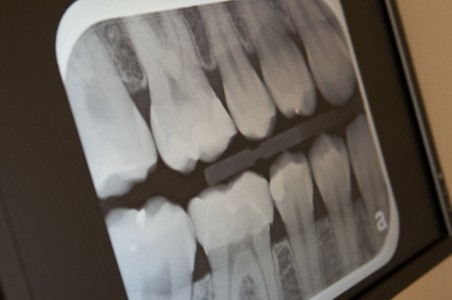 Safe Digital X-rays , sharp toothache repair