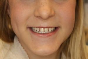 before-fixing-gaps-between-teeth