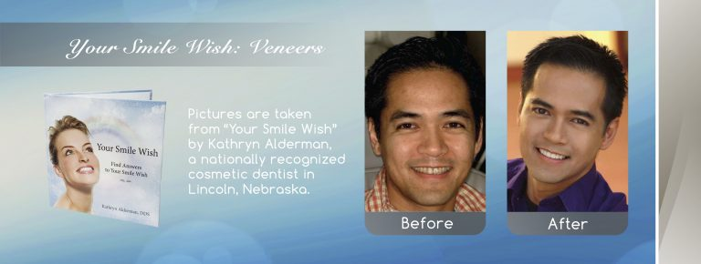 veneers banner for cosmetic dentistry in Lincoln, NE