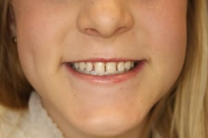 veneers-lincoln-ne by cosmetic dentist