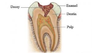 Tooth decay model Lincoln Family Dentistry