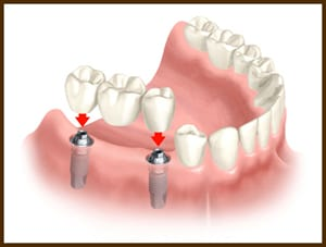 implant dental bridge for Replacing missing teeth
