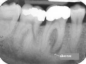 Radiographic dental abscess