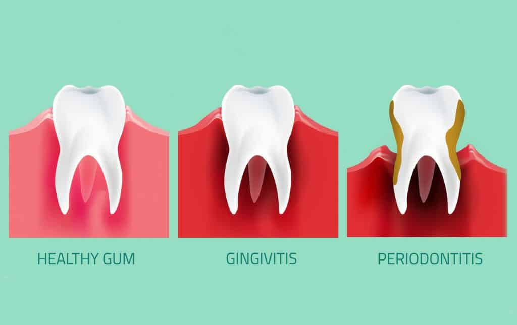 image illustrating receding gums