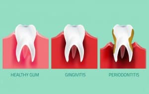 perio chart lincoln dentist NE