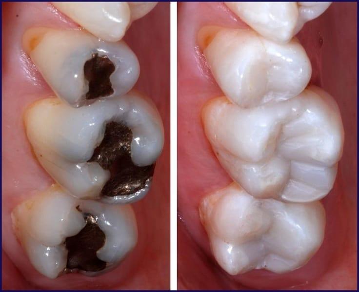 replacing-old-dental-fillings
