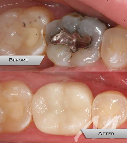 metal-free- dentist