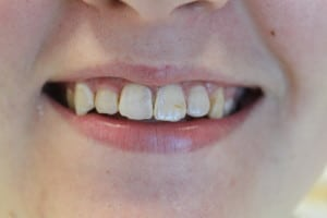 replacing-old-dental-fillings-cosmetic-dentist-lincoln-ne