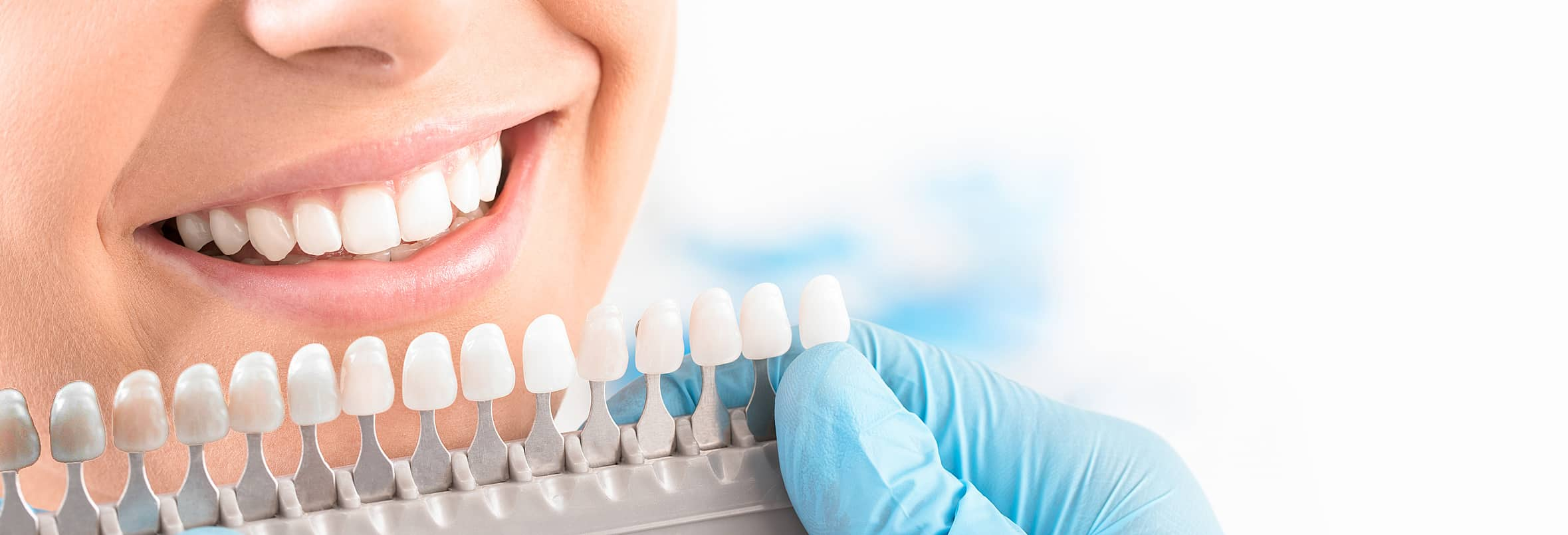 teeth whitening chart Best teeth whitening at home by your Lincoln, NE dentist