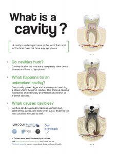 what is a cavity handout from Dentist for children and teens