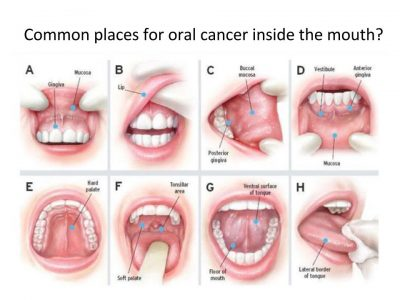 Oral Cancer Awareness .pptx (17)