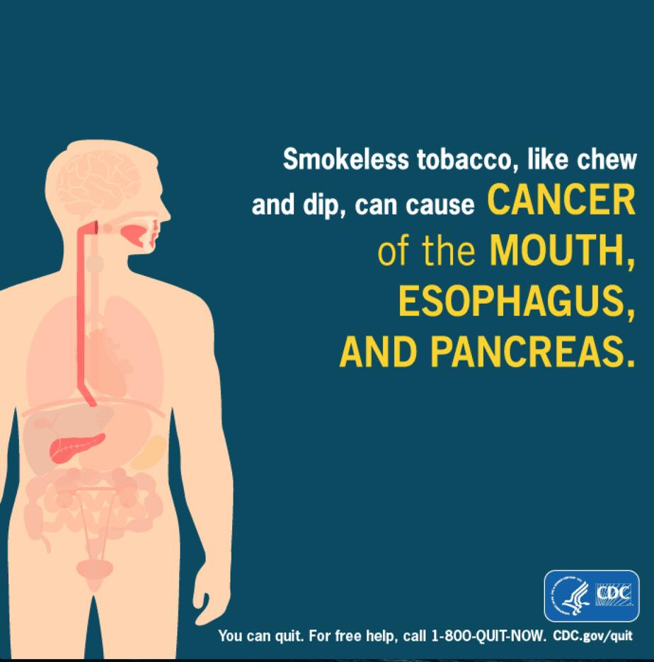 smokeless not harmless tobacco lincoln,NE dentist
