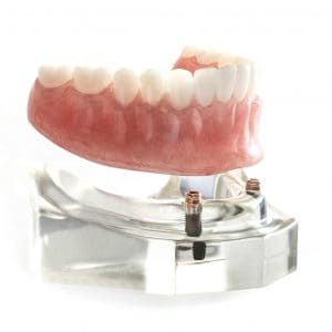 cosmetic dentures lincoln ne