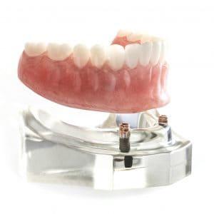 cosmetic dentures lincoln ne