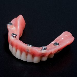 same day dentures hybrid prostheses