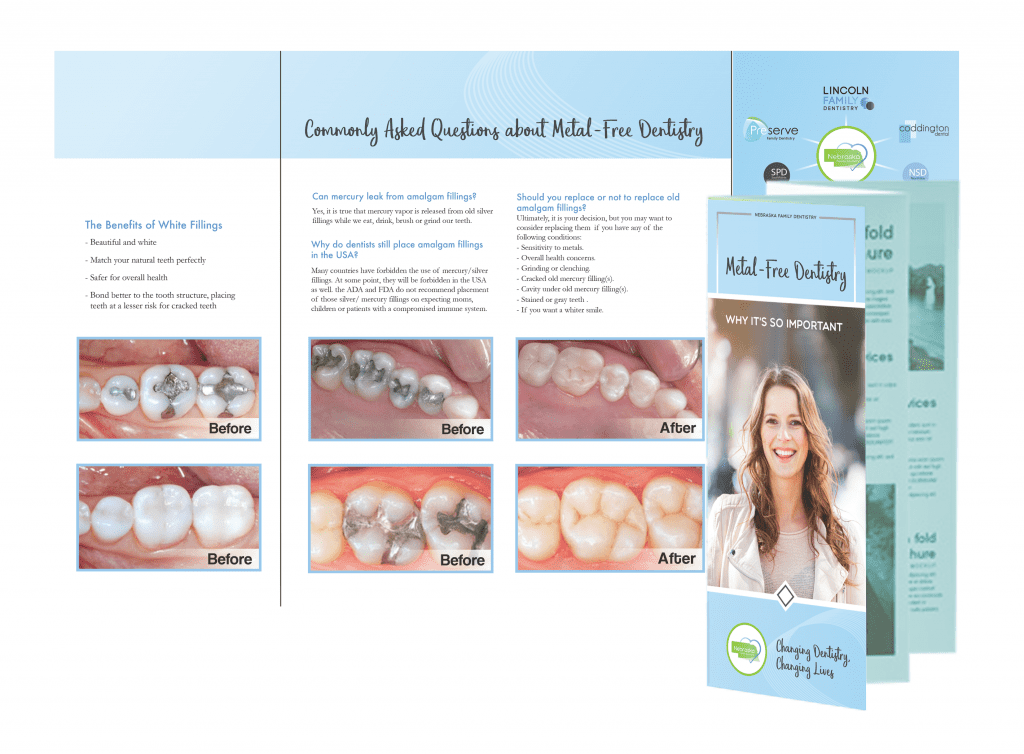 Image of the brochure about white fillings from Coddington Dental in Lincoln, NE.