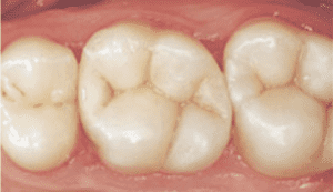 Image of how the removal of amalgam fillings can fix a smile by making it all white.