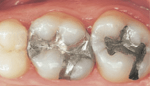 Image of teeth with amagam fillings. Cosmetic dentistry and amalgam removal can give any smile a boost.