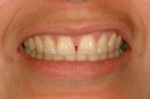 fixing gaps lincoln family dentistry lincoln ne