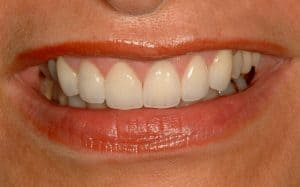 Cosmetic Dentistry gummy smile by lincoln family dentistry in lincoln ne