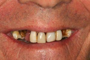 missing teeth lincoln family dentistry lincoln ne