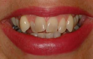 Cosmetic Dentistry straight teeth at lincoln family dentistry in lincoln ne