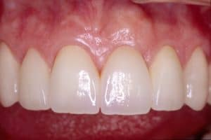 Cosmetic Dentistry tooth implant at lincoln family dentistry in lincoln ne