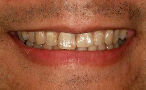 whiter teeth lincoln family-dentistry lincoln ne