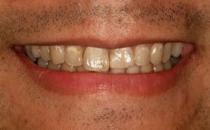 Cosmetic Dentistry whiter teeth at lincoln family-dentistry in lincoln ne