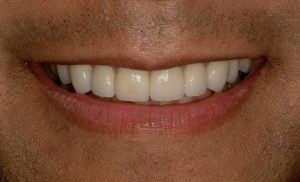 Cosmetic Dentistry whiter teeth at lincoln family dentistry in lincoln ne