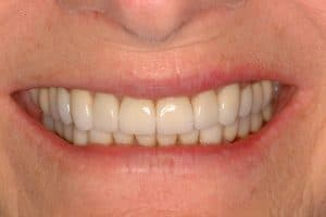 younger smile lincoln family dentistry lincoln ne