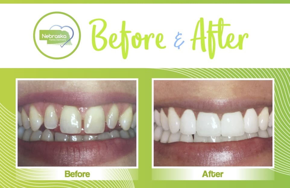 NFD before after of clear braces near me
