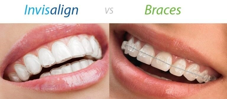 invisalign vs braces for clear braces for adults